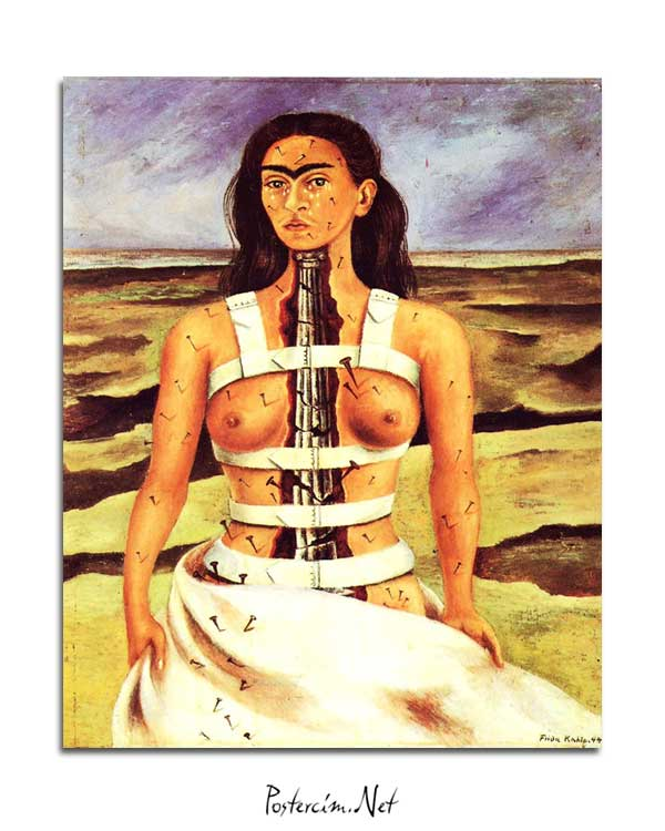 Frida Kahlo - The Broken Column posteri