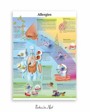 Allergies afişi