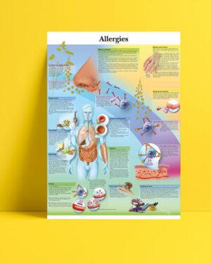 Allergies posteri