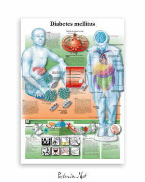 Diabetes Mellitus afişi