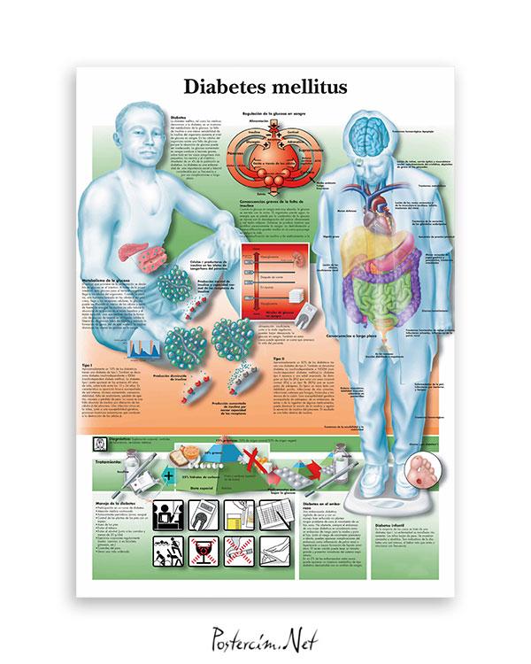 Diabetes Mellitus afişi