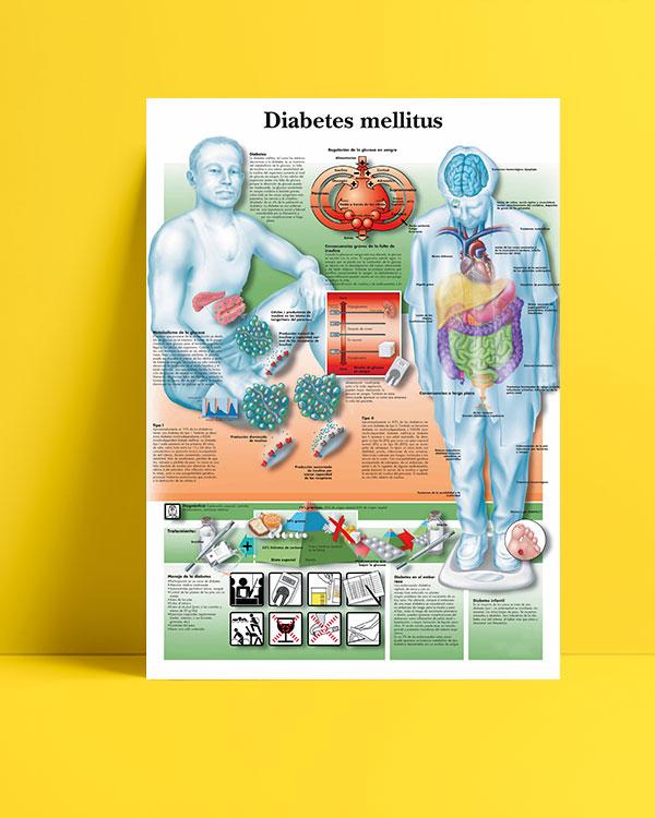 Diabetes Mellitus posteri