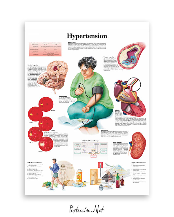 Hipertansiyon afişi