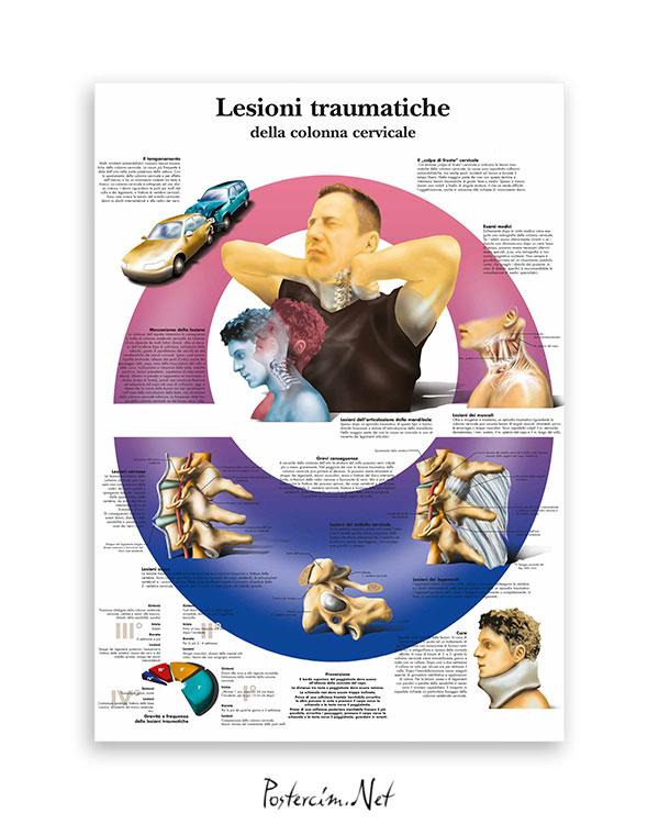 Lesioni traumatiche della colonna cervicale afişi