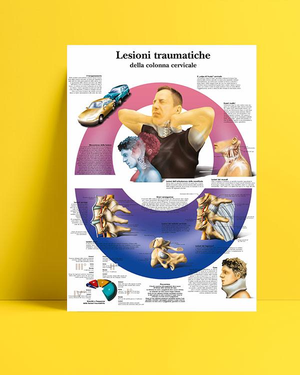 Lesioni traumatiche della colonna cervicale posteri