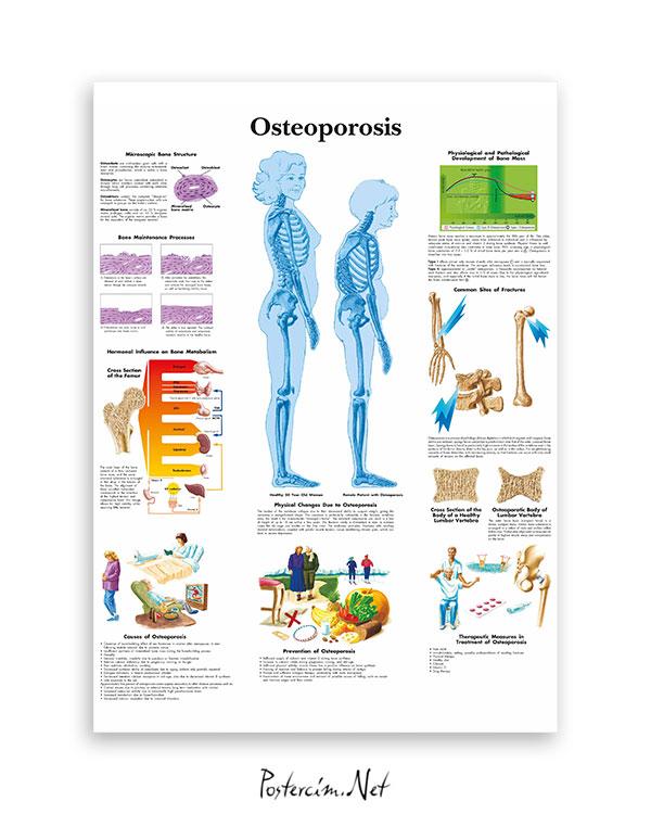 Osteoporoz (Kemik-Erimesi) afişi