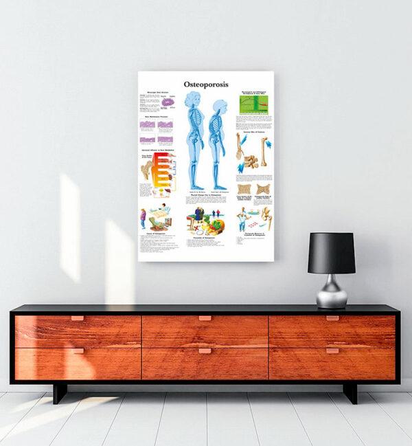 Osteoporoz (Kemik-Erimesi) kanvas tablo