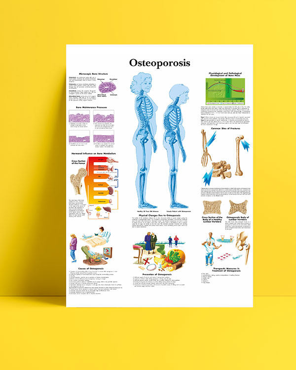 Osteoporoz (Kemik-Erimesi) posteri