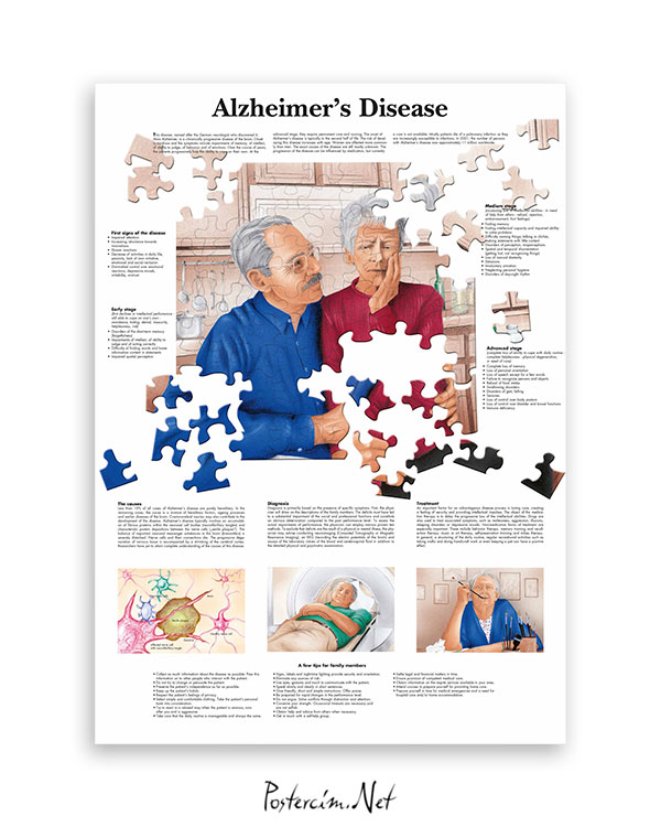 Alzheimer afişi