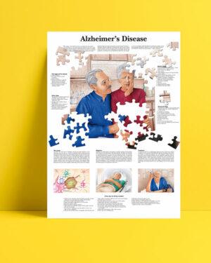 Alzheimer posteri