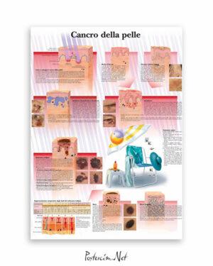Cilt Kanseri afişi