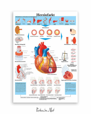 Kalp Krizi afişi