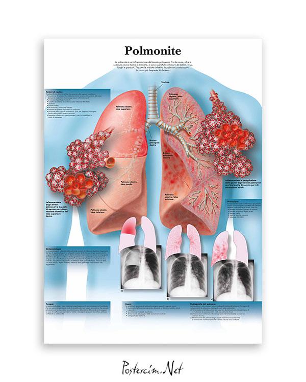 Polmonite (Zatürre) afisi
