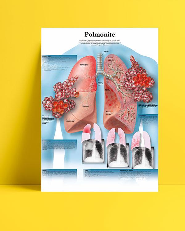 Polmonite (Zatürre) posteri
