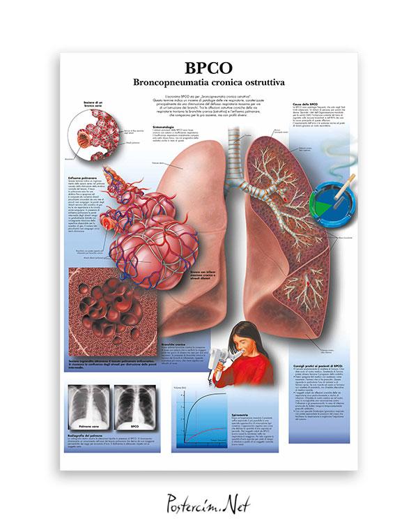 Kronik obstrüktif akciğer hastalıkları afisi