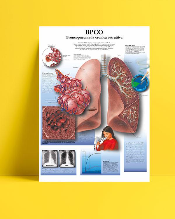 Kronik obstrüktif akciğer hastalıkları posteri