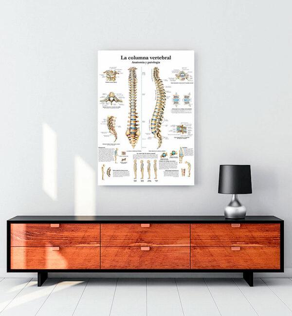 Omurga Anatomisi ve Patoloji kanvas tablo