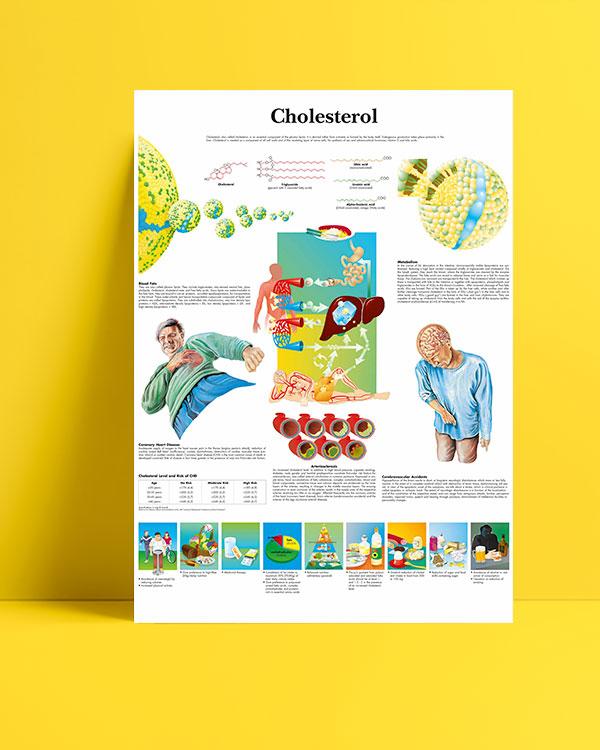 Cholesterol-kolesterol-posteri
