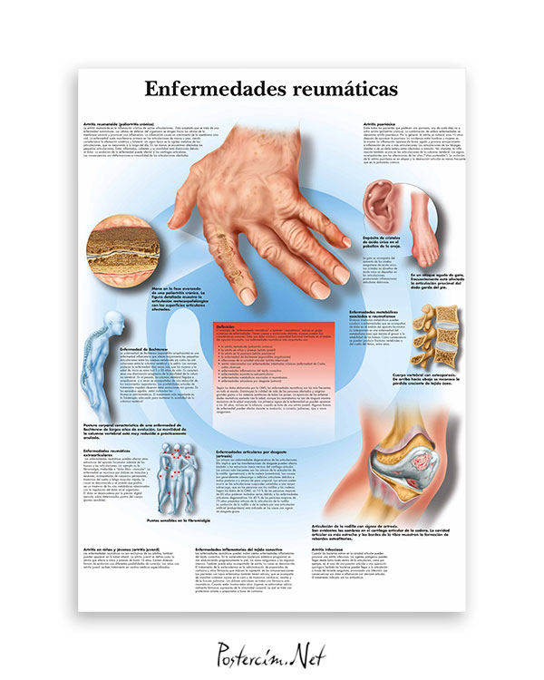 Enfermedades-reumaticas-romatizmal hastalıklar-afisi