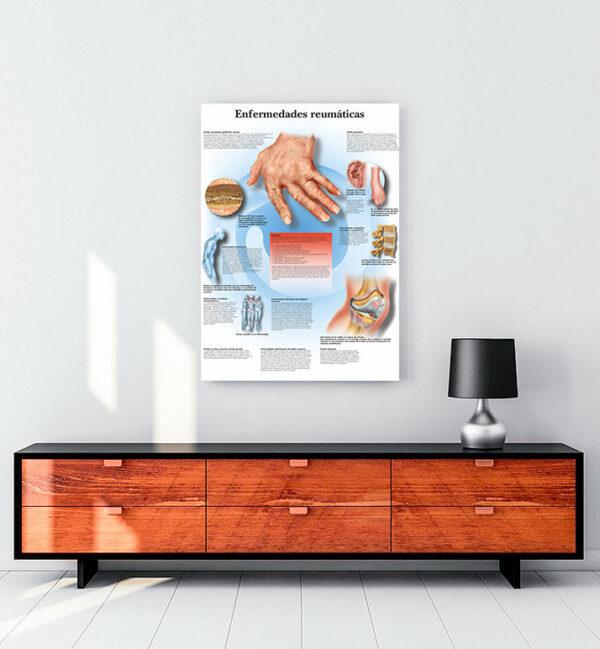 Enfermedades-reumaticas-romatizmal hastalıklar-kanvas-tablo