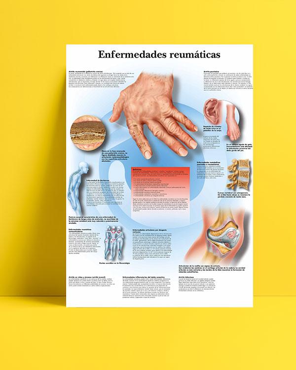 Enfermedades-reumaticas-romatizmal hastalıklar-posteri